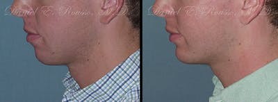 Chin/Mandibular Implants Gallery - Patient 1993374 - Image 1