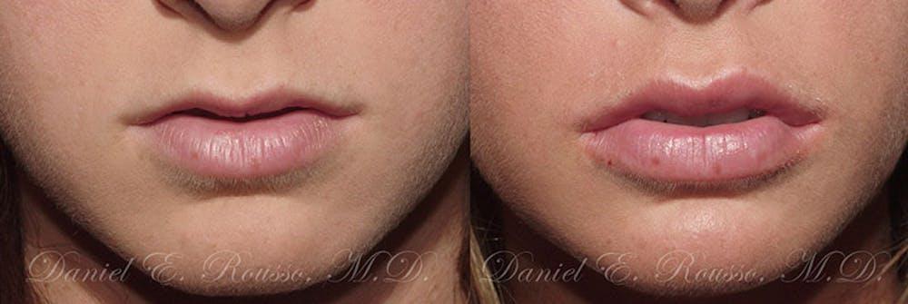 Lip Enhancement Gallery - Patient 1993381 - Image 1