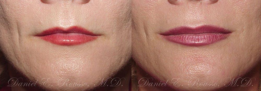 Lip Enhancement Gallery - Patient 1993383 - Image 1