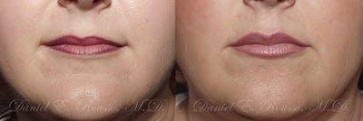 Lip Enhancement Gallery - Patient 1993384 - Image 1