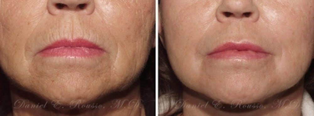 Skin Rejuvenation Gallery - Patient 1993386 - Image 1