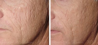 Skin Rejuvenation Gallery - Patient 1993389 - Image 1