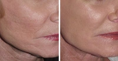Skin Rejuvenation Gallery - Patient 1993390 - Image 1