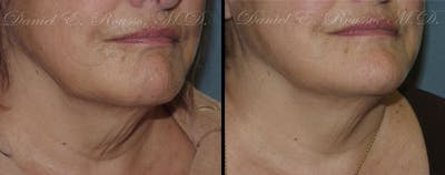 Ultherapy Gallery - Patient 1993392 - Image 2