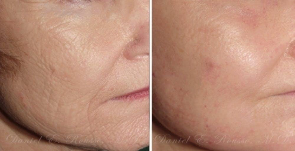 Skin Rejuvenation Gallery - Patient 1993393 - Image 1