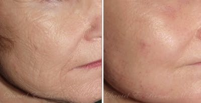 Skin Rejuvenation Gallery - Patient 1993393 - Image 1