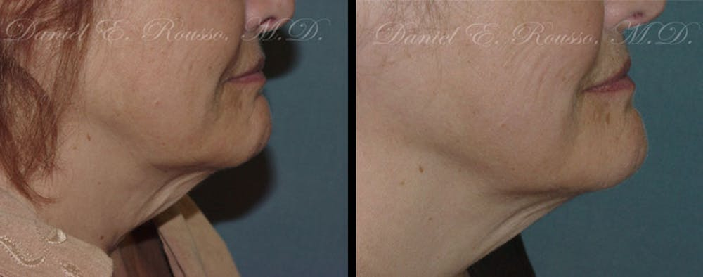 Ultherapy Gallery - Patient 1993392 - Image 1