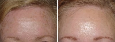 Skin Rejuvenation Gallery - Patient 1993395 - Image 1