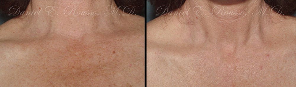 Skin Rejuvenation Gallery - Patient 1993397 - Image 1