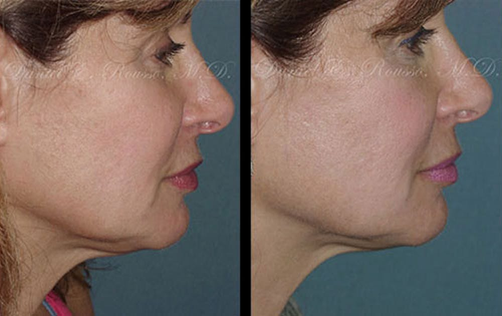 Ultherapy Gallery - Patient 1993399 - Image 1