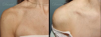 Skin Rejuvenation Gallery - Patient 1993400 - Image 1