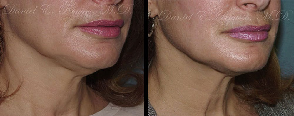 Ultherapy Gallery - Patient 1993399 - Image 2