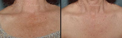 Skin Rejuvenation Gallery - Patient 1993402 - Image 1