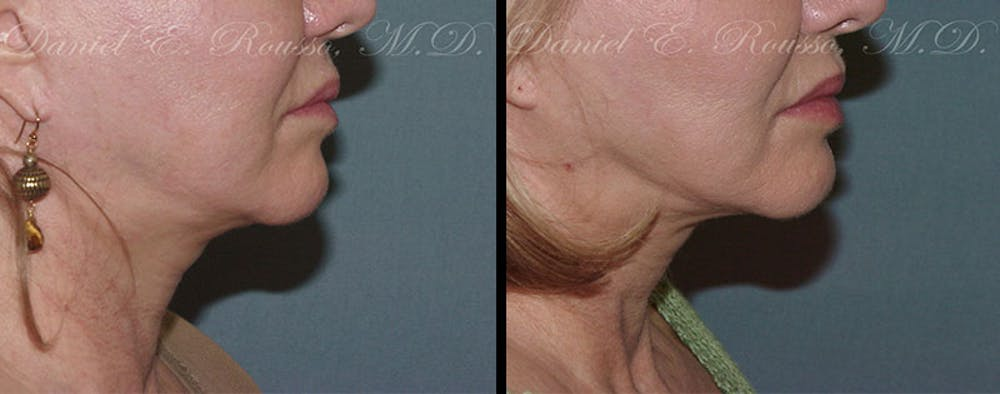 Ultherapy Gallery - Patient 1993403 - Image 1