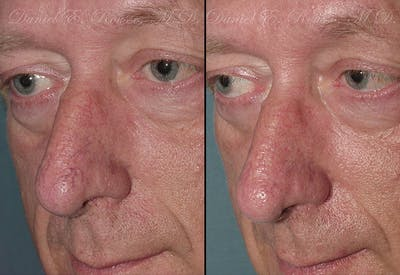Skin Rejuvenation Gallery - Patient 1993405 - Image 1