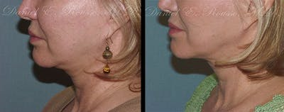 Ultherapy Gallery - Patient 1993403 - Image 2