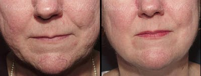 Skin Rejuvenation Gallery - Patient 1993409 - Image 1