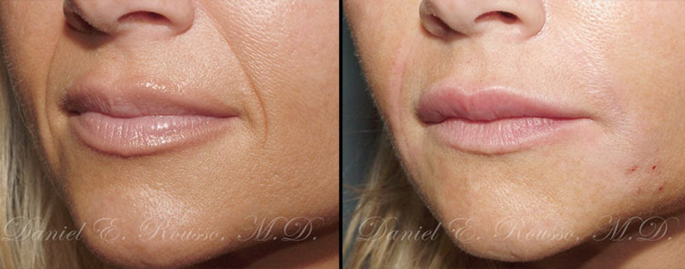 Fillers Gallery - Patient 1993430 - Image 1
