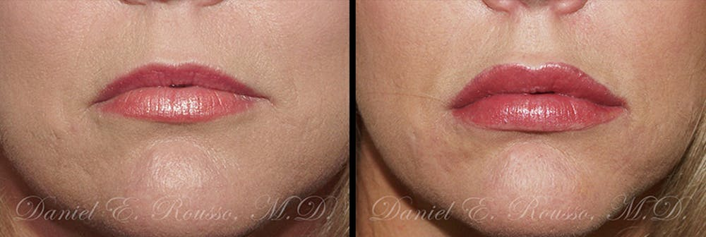 Fillers Gallery - Patient 1993433 - Image 1