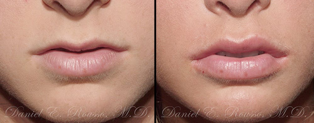 Fillers Gallery - Patient 1993434 - Image 1