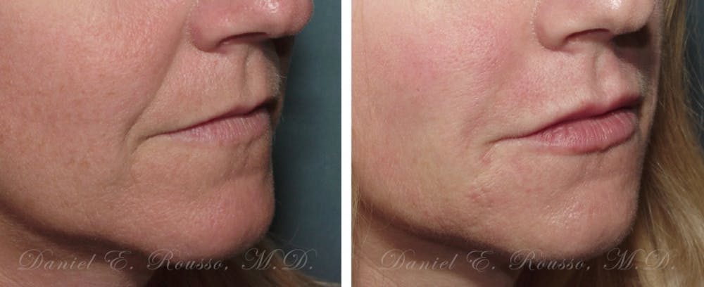Fillers Gallery - Patient 1993438 - Image 1