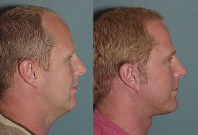 Male Facelift Gallery - Patient 1993440 - Image 1