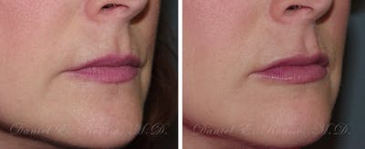 Fillers Gallery - Patient 1993441 - Image 2