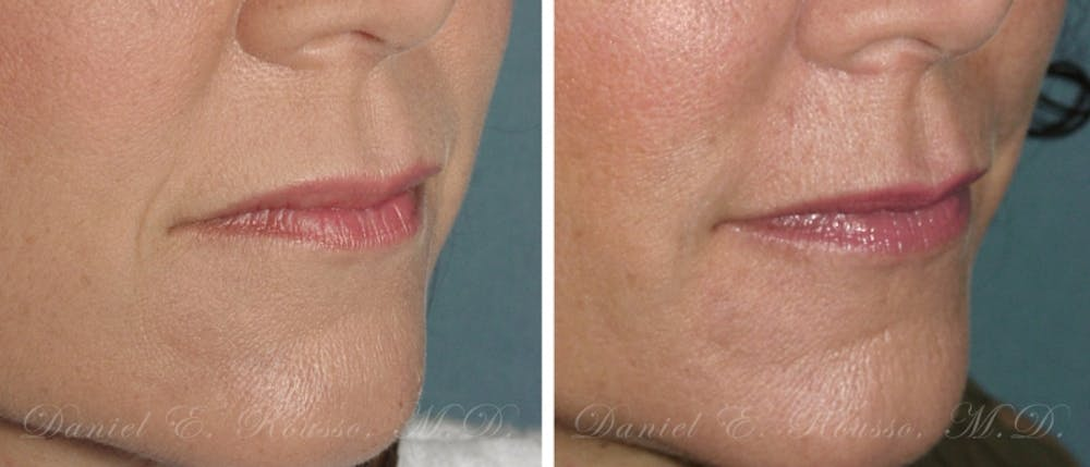 Fillers Gallery - Patient 1993444 - Image 1