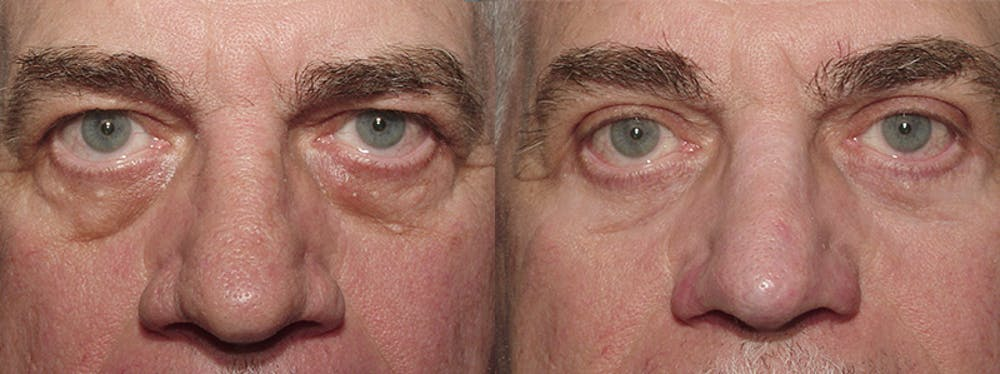 Blepharoplasty Gallery - Patient 2029504 - Image 1