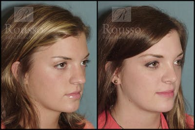 Rhinoplasty Gallery - Patient 2117630 - Image 1