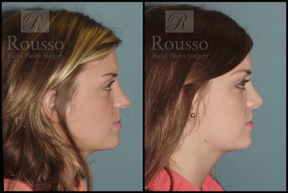 Rhinoplasty Gallery - Patient 2117630 - Image 3