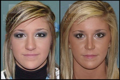 Rhinoplasty Gallery - Patient 2117638 - Image 1