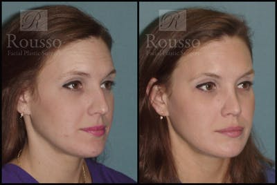 Rhinoplasty Gallery - Patient 2117639 - Image 1