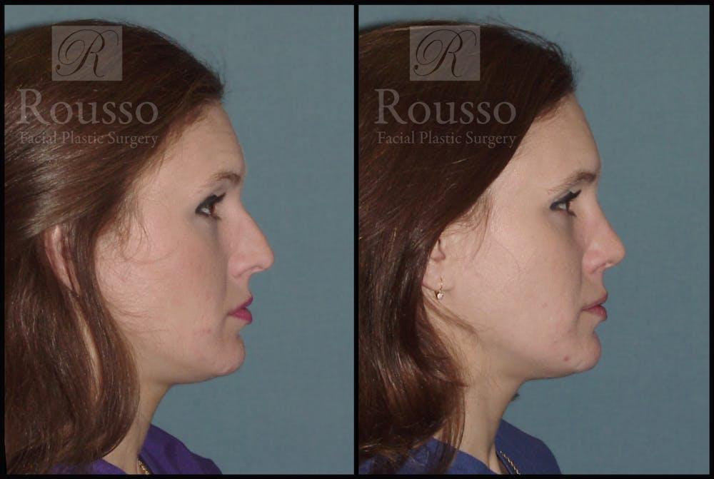 Rhinoplasty Gallery - Patient 2117639 - Image 2