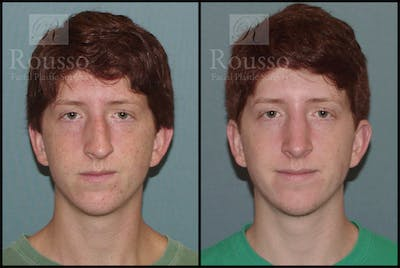 Rhinoplasty Gallery - Patient 2117641 - Image 2