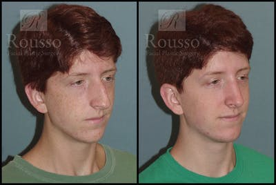 Rhinoplasty Gallery - Patient 2117641 - Image 1