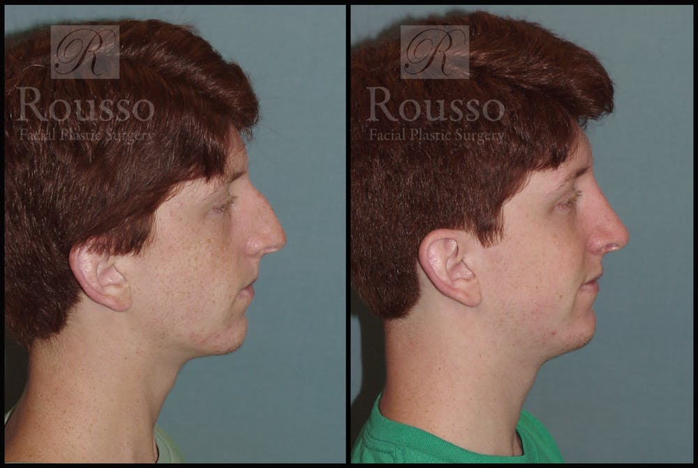 Rhinoplasty Gallery - Patient 2117641 - Image 3