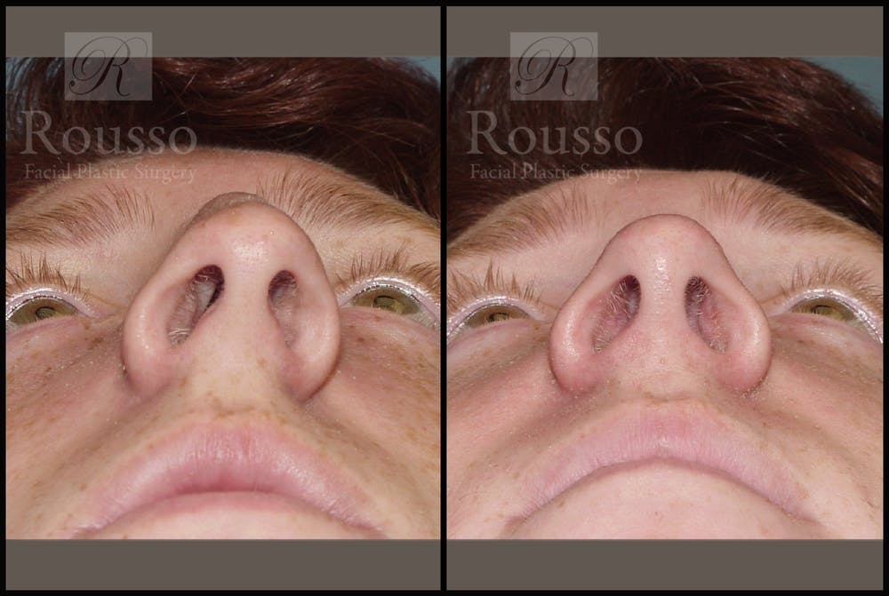 Rhinoplasty Gallery - Patient 2117641 - Image 4