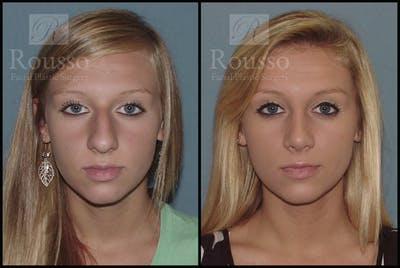 Rhinoplasty Gallery - Patient 2117644 - Image 1
