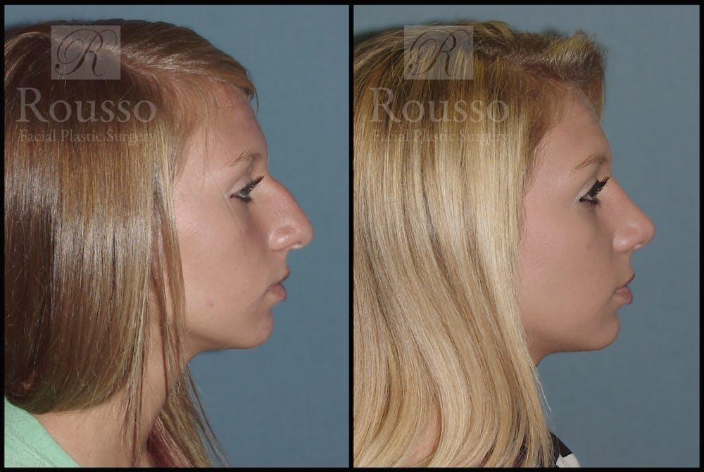 Rhinoplasty Gallery - Patient 2117644 - Image 3
