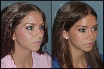 Rhinoplasty Gallery - Patient 2117645 - Image 1