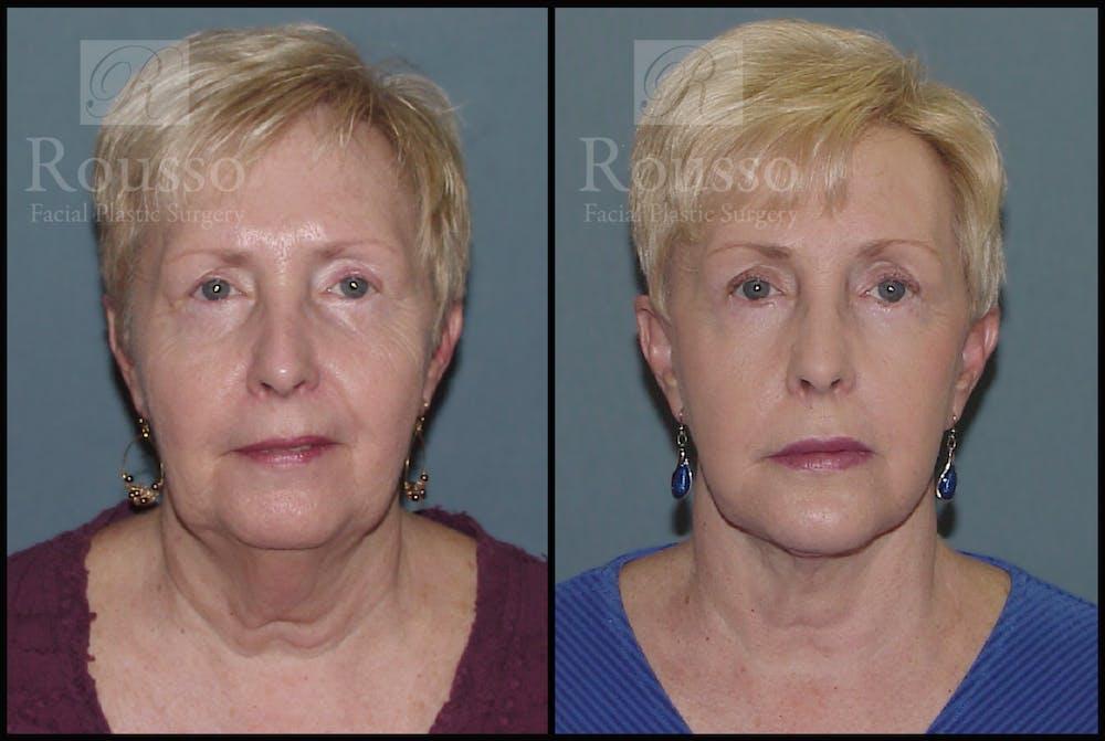 Facelift Gallery - Patient 2117663 - Image 3