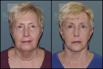 Facelift Gallery - Patient 2117663 - Image 1