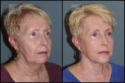 Facelift Gallery - Patient 2117663 - Image 2