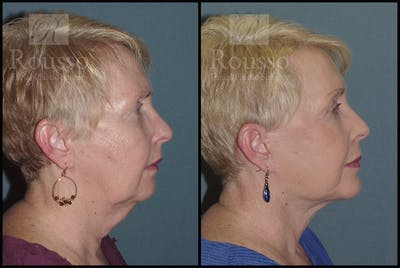 Facelift Gallery - Patient 2117663 - Image 1