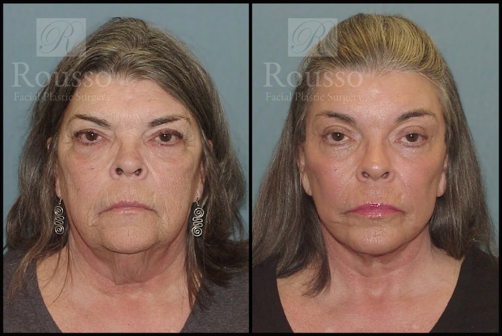 Facelift Gallery - Patient 2117664 - Image 3