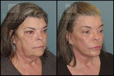 Facelift Gallery - Patient 2117664 - Image 2