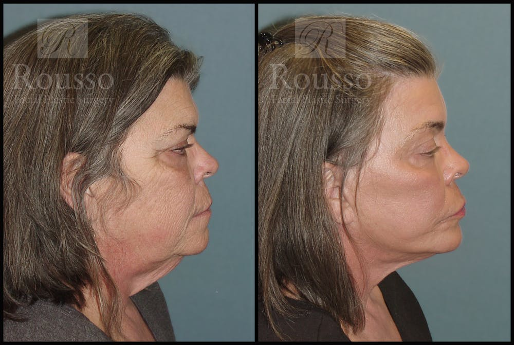 Facelift Gallery - Patient 2117664 - Image 1