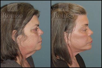 Facelift Gallery - Patient 2117664 - Image 1