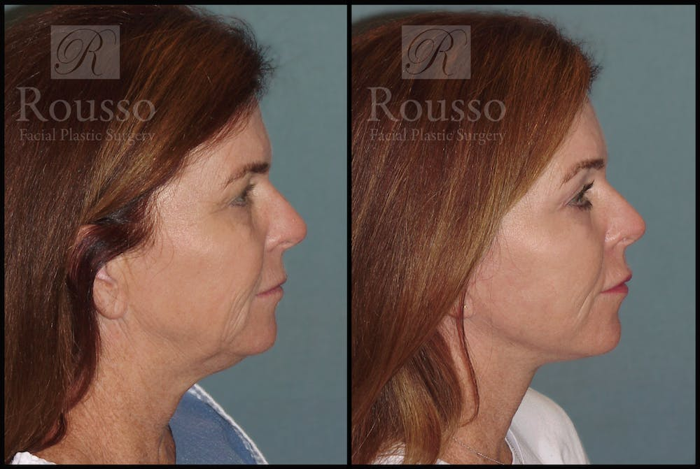 SculptLift™ Gallery - Patient 2127529 - Image 3